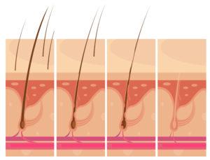 Hair Loss Skin Concept